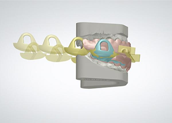 orthoapnea-noa-manufacturing