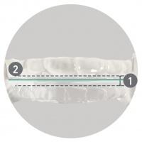 vue-frontale-leva-noa-orthoapnea